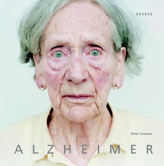 Guten Morgen Herr Alzheimer!